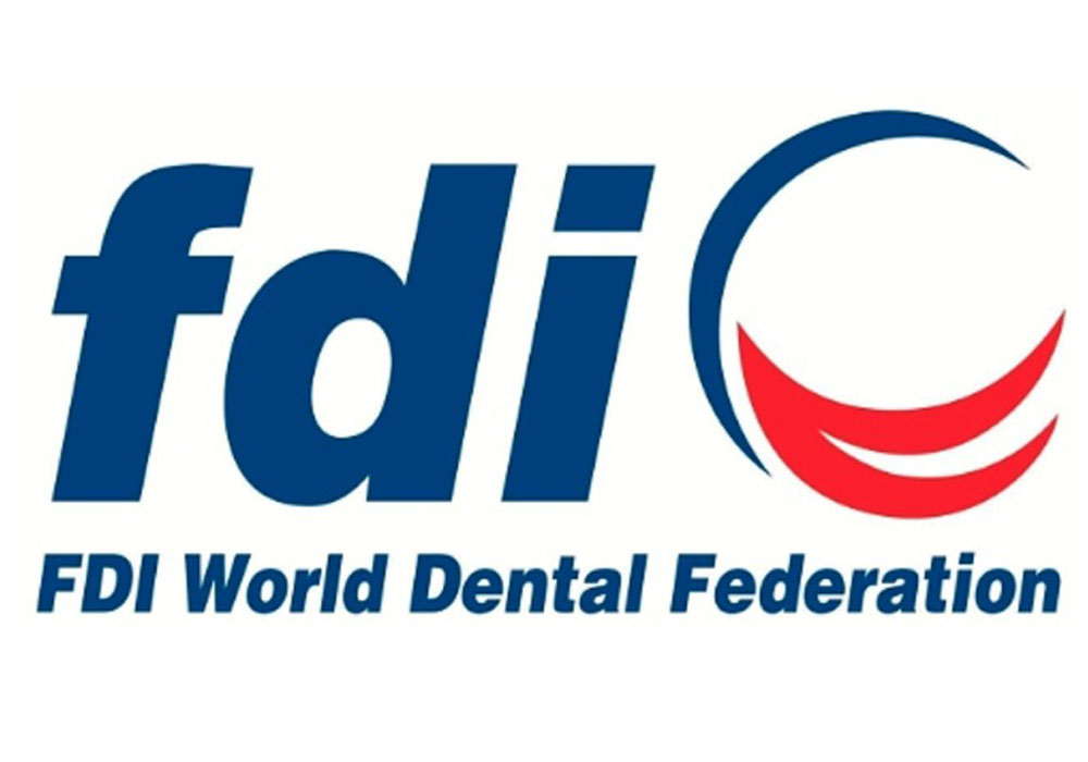 FDI internationale